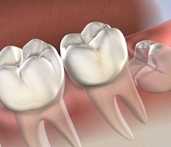 procedure-wisdom-teeth